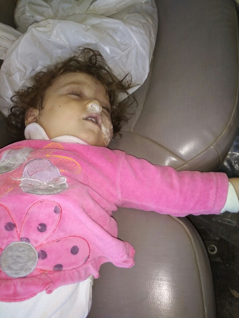 More than 67 Civilians Killed in the Largest Chemical Attack in